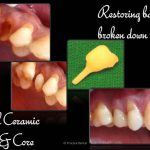 Restoration of broken tooth