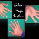 Silicone Finger Prostheses