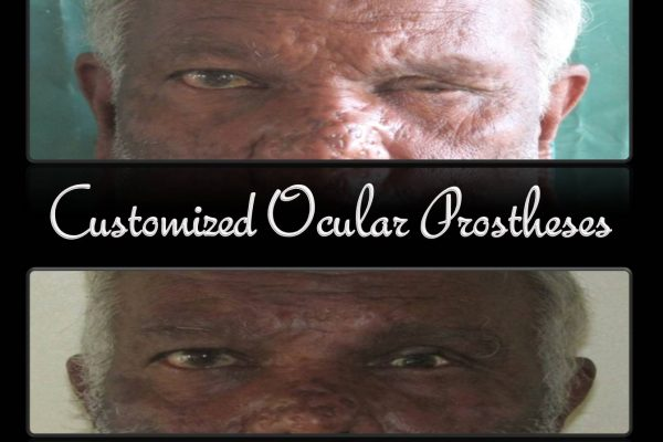 Customised Ocular Prostheses