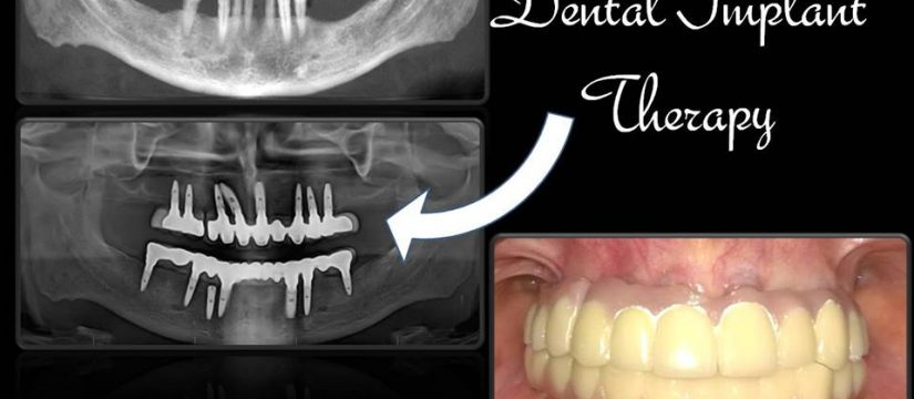 Dental Implant Therapy