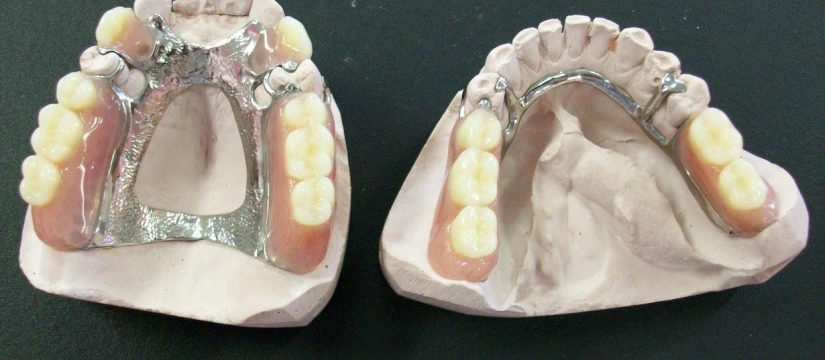 partial-cast-dentures