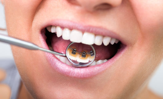 Teeth Alignment